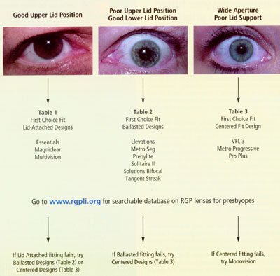 contact lens spectrum fitting the presbyope with gas permeable