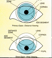contact lens spectrum mastering multifocals