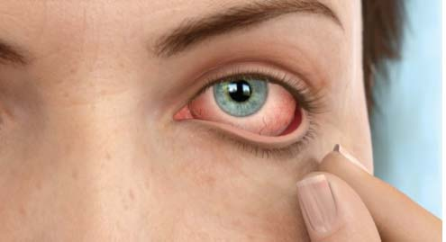 Contact Lens Spectrum - Treating Dry Eye With ...