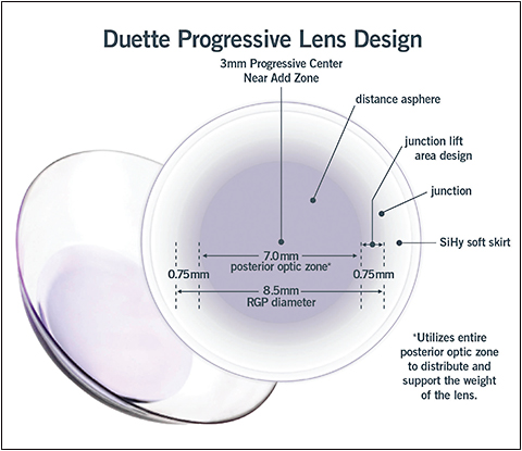 The Duette Progressive Lens Design From Synergeyes