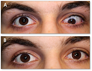 A strabismus patient (A), and the same patient in which the deviating eye has a prosthetic lens with a decentered iris and pupil (B).