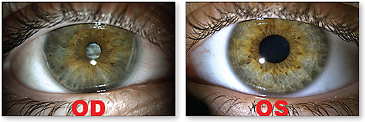 Figure 1. Teenage female patient with a history of ocular toxocariasis at age 4, OD and OS shown. Note the anisocoria as well as the leukocoria and iris heterochromia, OD, about which she was self-conscious.