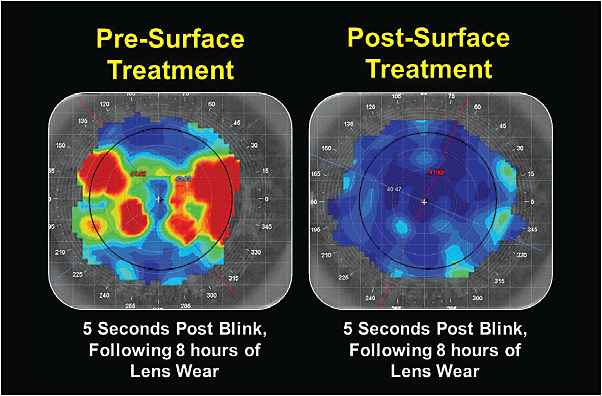 Figure 3. The patient's tear film quality following eight hours of lens wear pre- and post-surface treatment.