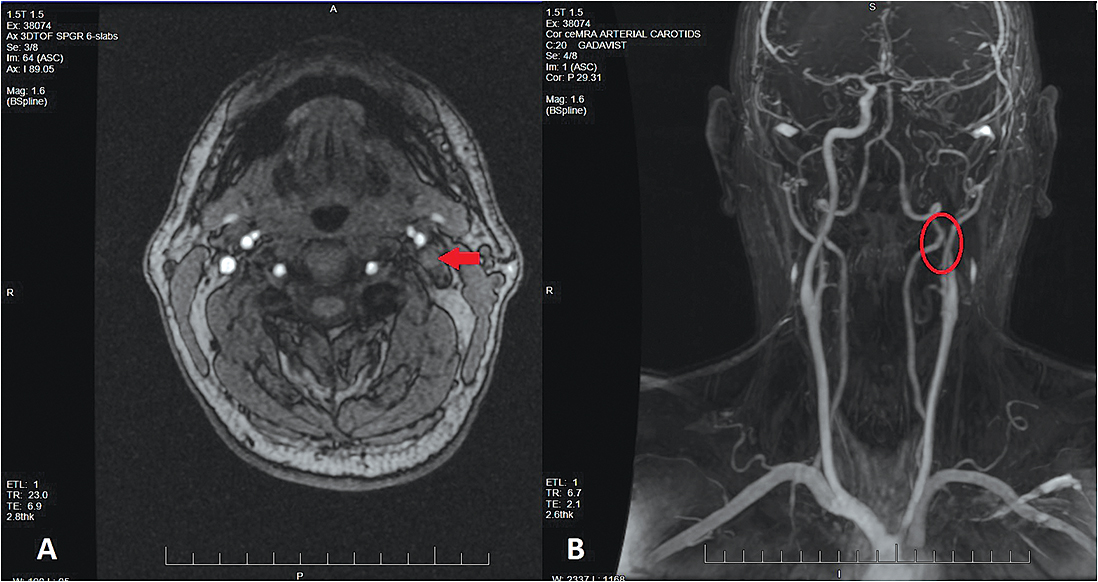 Figure 1. (A) Axial 3D time-of-flight MRA image of the head demonstrates a left internal carotid artery dissection with complete occlusion (arrow). (B) Contrast-enhanced MRA coronal image showing the extent of occlusion beginning at the cervical (C1) level of the left internal carotid artery (circle).