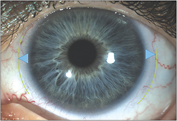 Figure 1. A concentric multifocal lens with center-near optics settled on patient eye, OS. The blue triangles are of equal size to highlight lens centration.