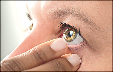 Figure 1. Contact lens with strain gauge sensor. 