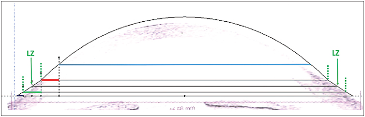 Figure 2. Scleral lens design on cross-sectional tomogram produced by optical coherence tomography showing that the only zone that bears on the ocular surface (the sclera) is the extension of the LZ.