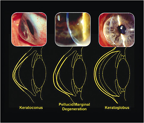 Figure 1. Common forms of acquired asymmetric and irregular astigmatism.