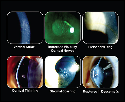 Figure 2. Common slit lamp findings in keratoconus.