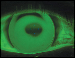 Figure 1. A 6.25mm base curve lens showing heavy apical bearing in a keratoconus patient.