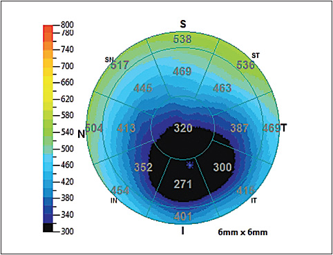 Figure 2. Global pachymetry showing severe thinning in a post-LASIK patient.