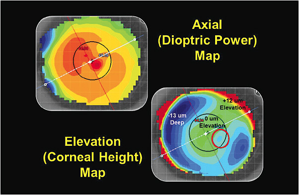 Figure 2. The left eye axial and elevation display corneal topography maps.