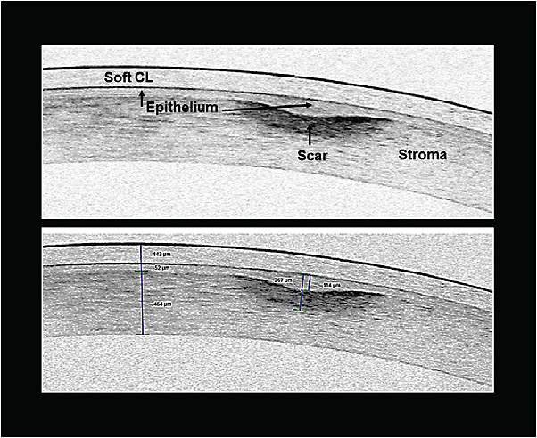 "Figure 3. OCT imaging clearly shows the slight depression over the site of the traumatic injury. The depression is secondary to a loss of stromal tissue. A 114-micron-deep epithelial plug formed to fill the void and ""smooths"" the ocular surface."