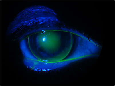 Figure 5. Fluorescein pattern of the lens refit, 2017.