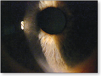 Figure 3. Corneal staining not visible with standard slit lamp evaluation.