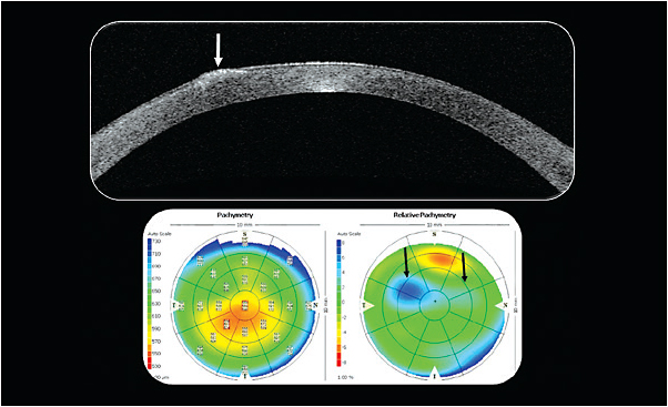 Figure 3. Optical coherence tomography imaging of the right eye. Note the relative pachymetry map on the right side highlighting the two primary areas of localized corneal thickening.