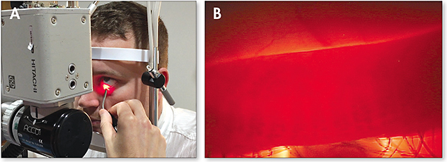 Figure 2. Eyelid transillumination being performed at the slit lamp (A). Slit lamp view of eyelid transillumination for visualization of the meibomian glands (B).