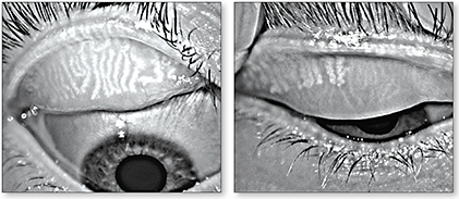Figure 1. Incipient dropout (left) and severe dropout (right) in meibomian gland dysfunction.