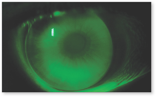 contact lens spectrum when astigmats become presbyopic