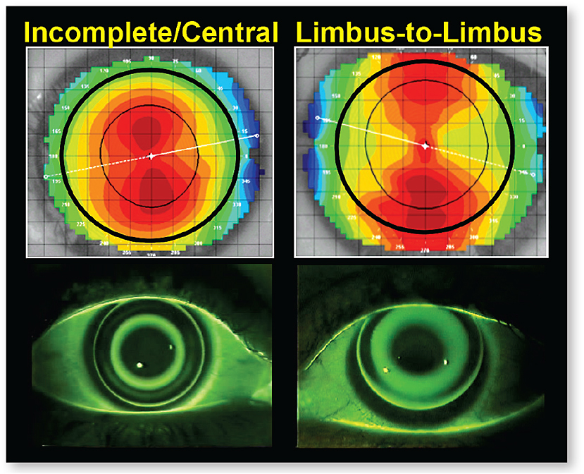 Figure 9. A spherical ortho-k lens can land properly and center on an eye with central astigmatism (left), but not on an eye with limbus-to-limbus astigmatism (right).