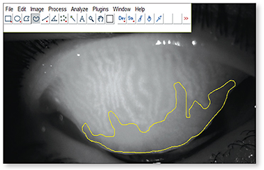 Figure 1. Meibography image analysis. The freehand tool in ImageJ was used to select the area of meibomian gland loss.