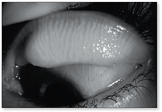 Figure 2. A normal meibography image of a subject who had a severe dry eye symptom score.