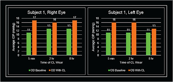 Figure 2. Patient 1 right and left eye measurements.