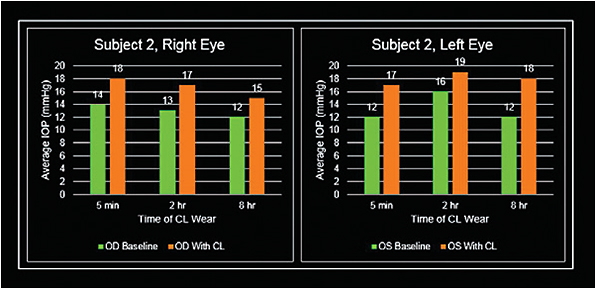 Figure 3. Patient 2 right and left eye measurements.