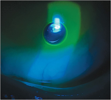 Figure 2. Inferior bubble in the post-lens fluid reservoir.