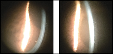 Figure 3. Debris in the reservoir. The images show a turbid liquid layer behind the lens and the presence of small white mucous debris.