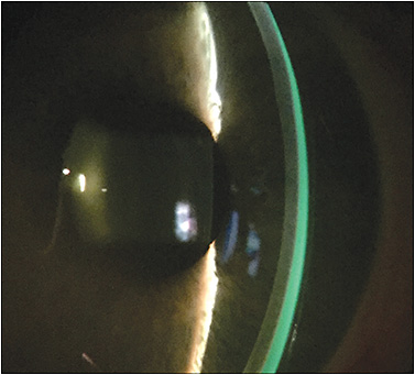 Figure 5. Prismatic fluid layer produced by a decentered scleral lens. Vertical decentration may induce a significant prismatic effect, which is a cause of residual astigmatism.
