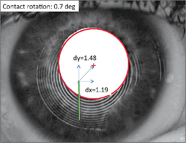 Figure 1. Decentered scleral lens on the right eye of a keratoconus patient.