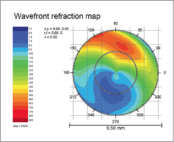 Figure 2. Wavefront map OD with a best-corrected scleral lens of the patient in Figure 1.