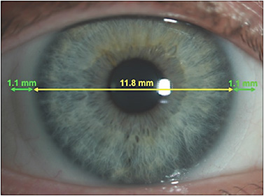 Figure 1. Soft contact lens with appropriate scleral drape and centration.