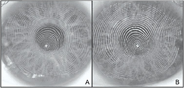 Figure 2. Irregular astigmatism secondary to keratoconus. Note the irregularity of the mires in (A) with no contact lens and a smoothing of the mires in (B) with a custom soft contact lens.