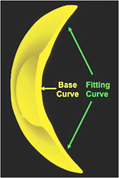 "Figure 3. The central base curve of the custom soft contact lens is steeper than the ""fitting curve,"" which lands on the more regular sclera."