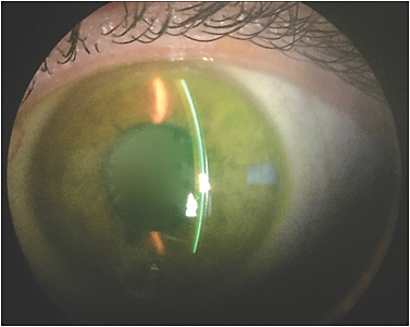 Figure 1. Scleral lens evaluation with sodium fluorescein using a slit beam with white light.