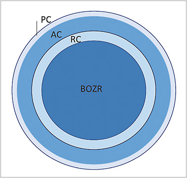 Figure 1. Representation of modern reverse-geometry GP lens used for ortho-k. Reverse-geometry lenses have a flat central curve (BOZR) and an adjacent reverse curve (RC) that is steeper than the central radius. This reverse curve is connected to a flatter curve that aligns with the midperipheral cornea (AC). A final peripheral curve is added for tear exchange (PC).