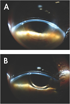 Figure 3. (A) Slit lamp cross-section view OD; (B) Slit lamp cross-section view OS.