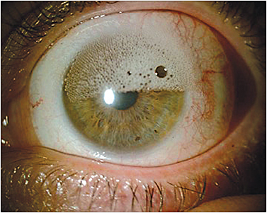 "Figure 1. An example of ""frothing"" caused by air bubbles trapped beneath a large-diameter scleral lens."