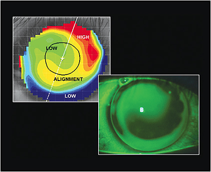 Figure 2. The fluorescein pattern of the right eye matches the elevation map.