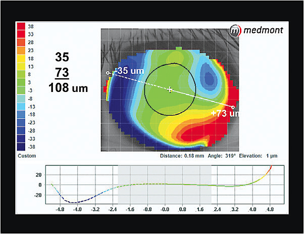 Figure 3. Elevation display map of the patient's left eye.