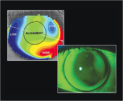 Figure 4. The fluorescein pattern of the left eye matches the elevation map.