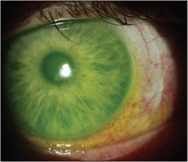 Figure 1. Scarring of the conjunctiva and sclera leading to compression with a moderately sized scleral lens. Because of the location of the elevation, decreasing the lens diameter may be an effective way of alleviating the compression on the scarring.