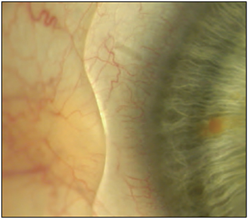 Figure 5. A notch in a scleral lens accommodating a pinguecula.