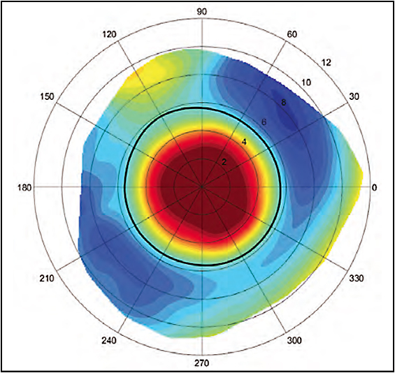 Figure 8. Scleral topography demonstrates scleral toricity and the location of a filtering bleb superiorly.