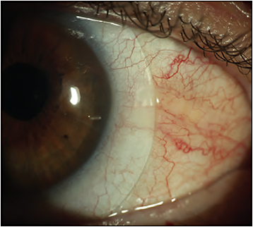 Figure 12. Same eye as shown in Figure 11 with microvault lens.