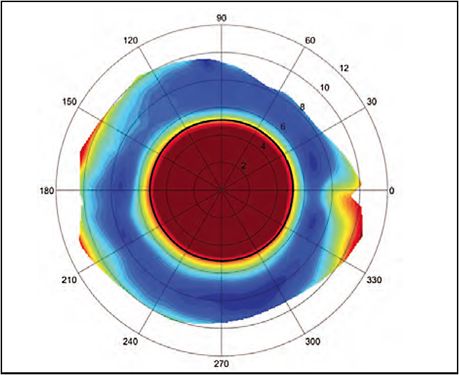 Figure 13. Scleral topography demonstrates the location, width, and depth of a pinguecula on the nasal conjunctiva.