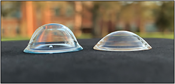 Figure 1. GP scleral lenses designed for a patient with keratoglobus (left) and a patient with moderate keratoconus (right). Courtesy of Sheila Morrison, OD, and Beth Kinoshita, OD