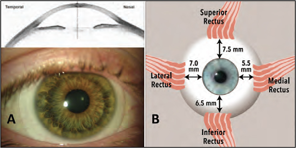 Figure 5. Anterior view of extraocular muscle to highlight varying insertion locations from the limbus, which may help to explain some of the asymmetry seen in scleral/conjunctival shape measurements. Courtesy of Patrick J. Caroline and Eef van der Worp, BOptom, PhD
